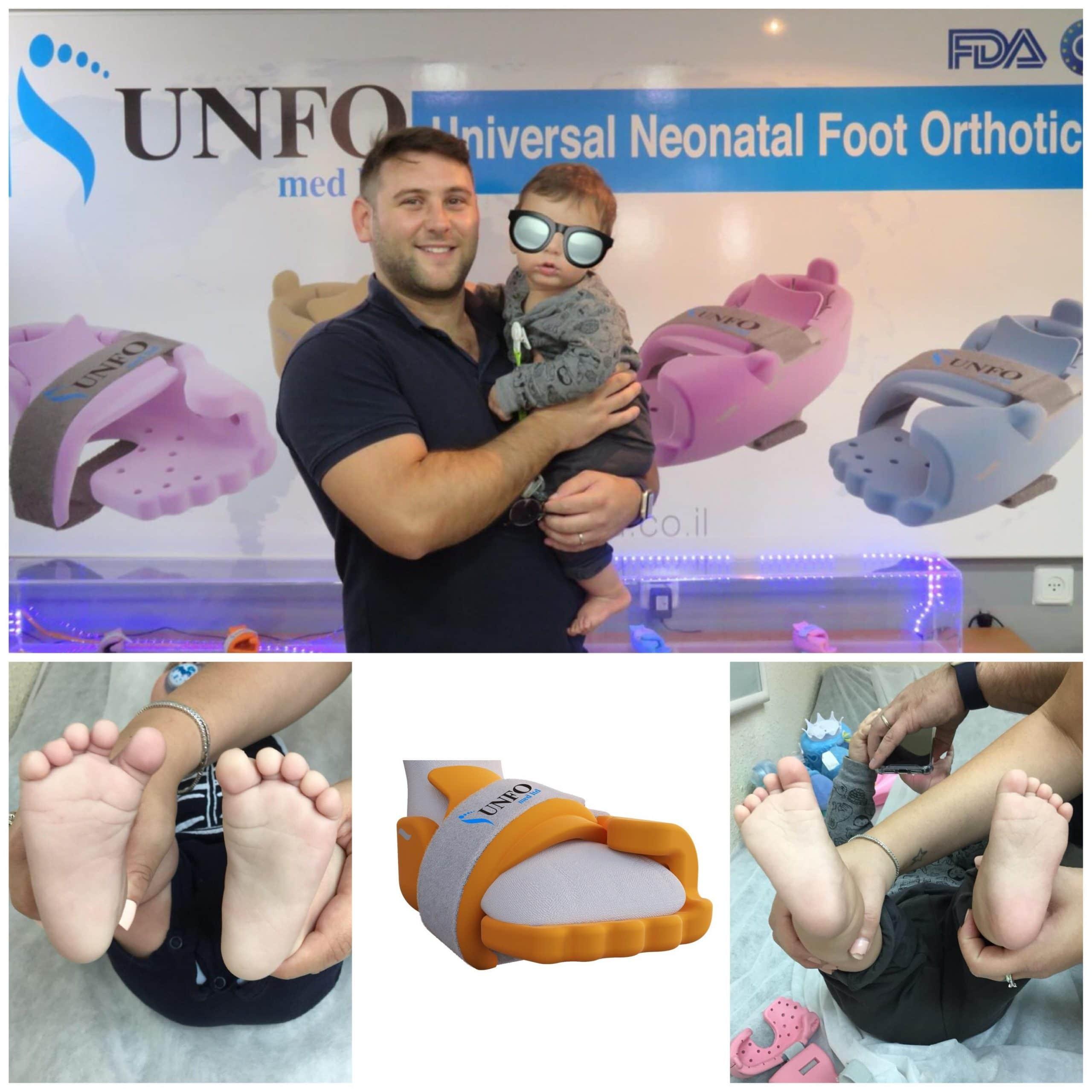 metatarsus adductus shoes